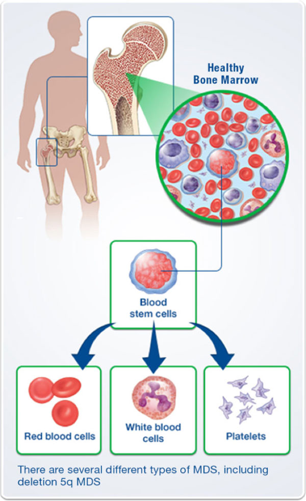 Illustration of healthy bone marrow and blood stem cells producing red blood cells, white blood cells, and platelets